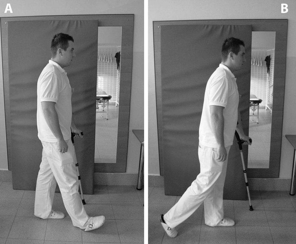 Rehabilitacja Przed I Po Zabiegu Endoprotezainfo